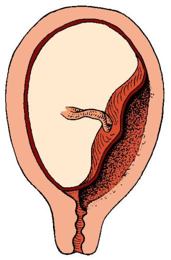 частичное предлежание плаценты