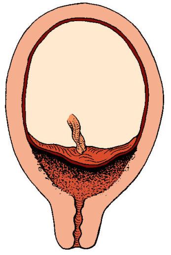 центральное или полное предлежание плаценты